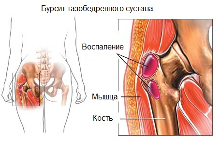 Treatment of diseases of the hip joint folk remedies